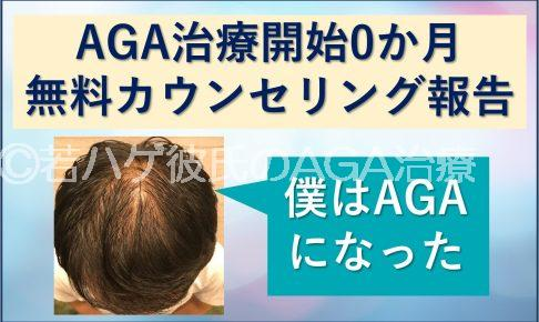 AGA治療開始0か月