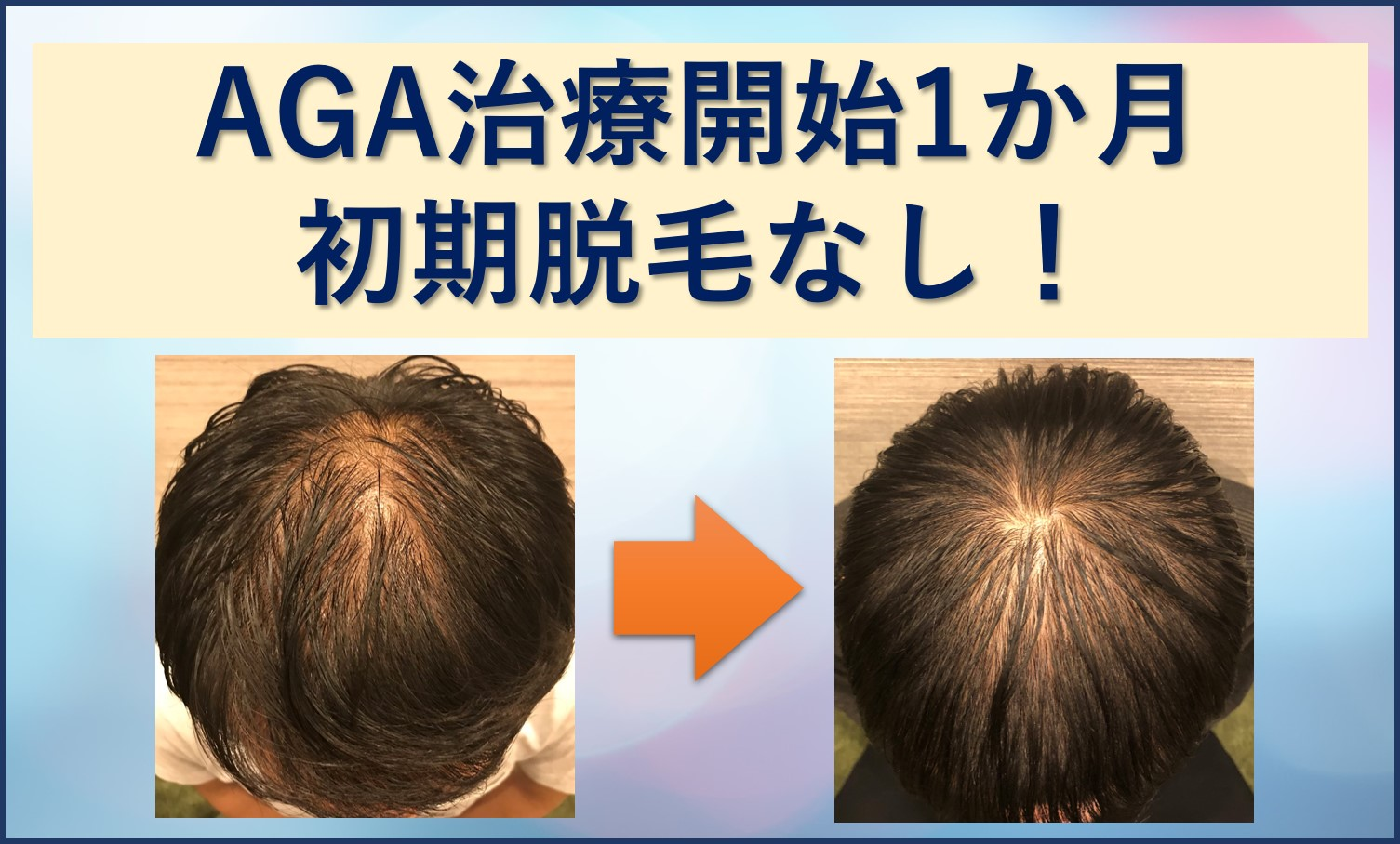 AGA治療1か月目、初期脱毛無し