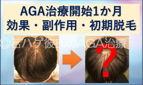 AGA治療1か月目