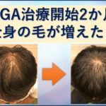 AGA治療2か月目で全身の毛が増えた