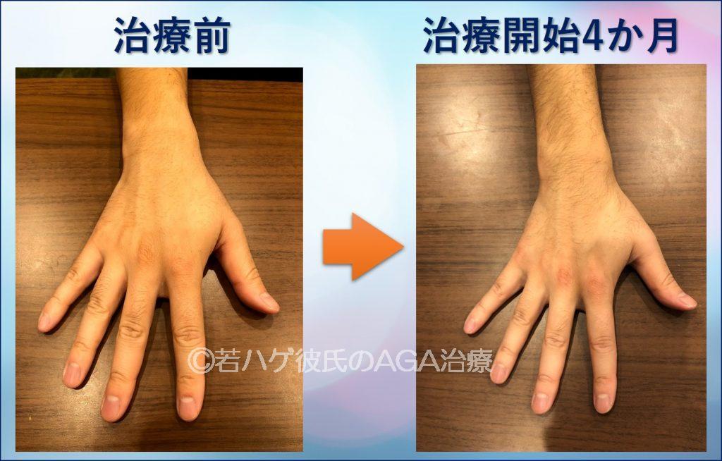AGA治療4か月の腕