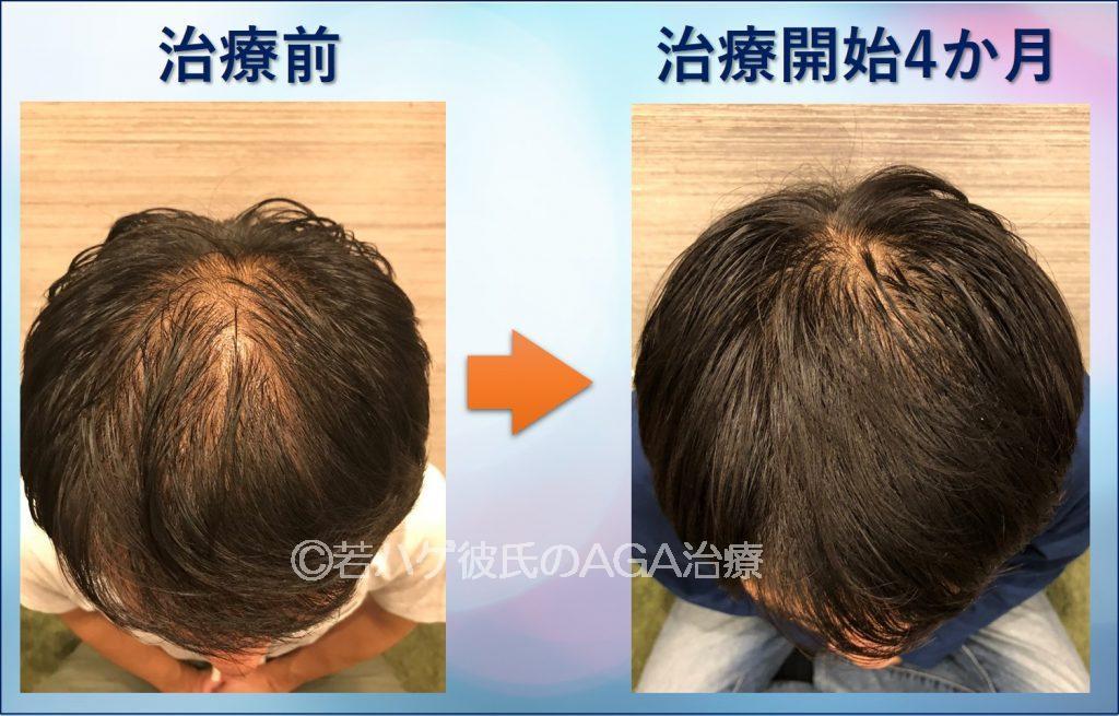 AGA治療4か月目の頭頂部