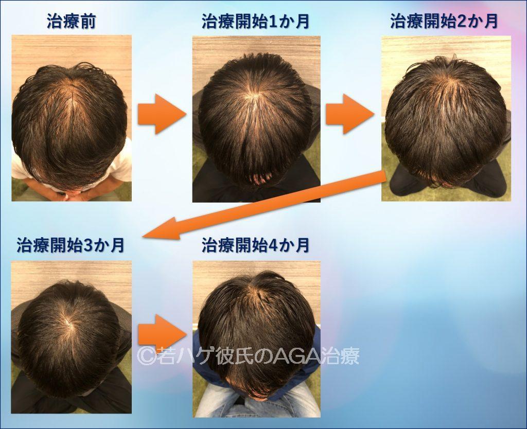 AGA治療4か月間の推移