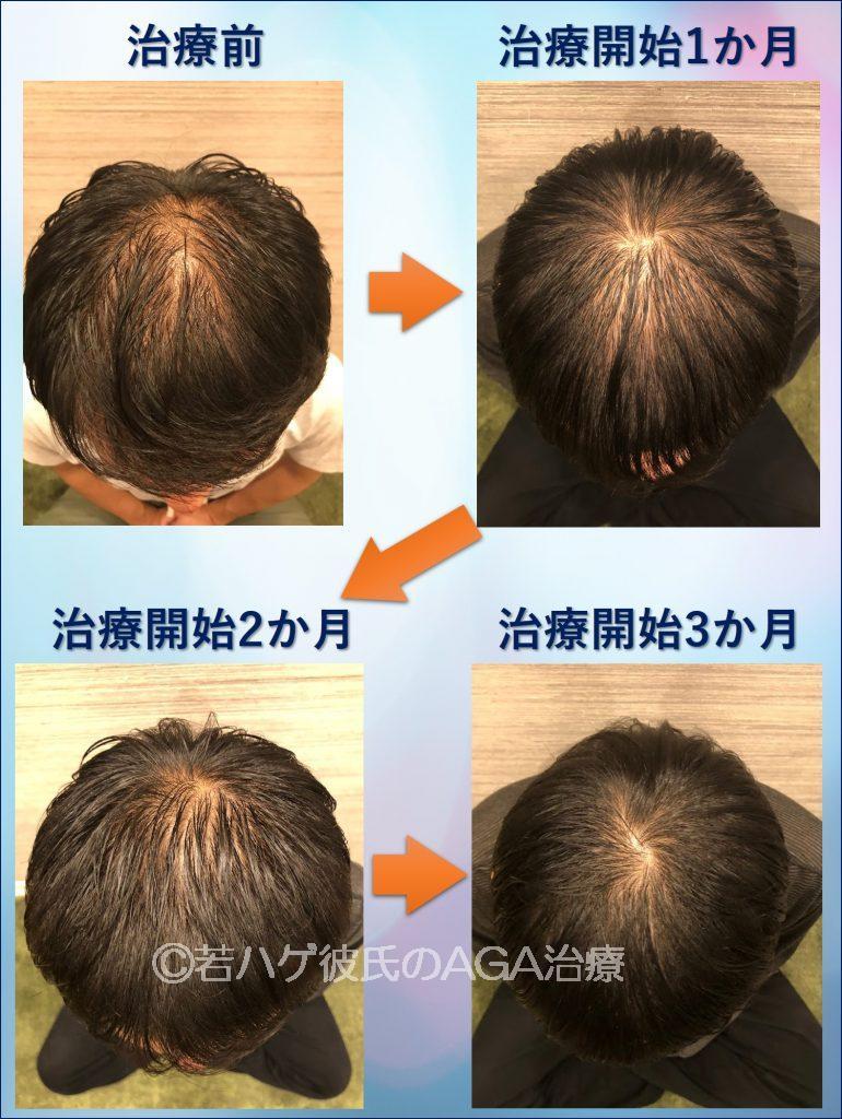 AGA治療で彼氏の毛量が激増