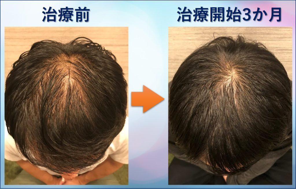 AGA治療3か月の頭頂部