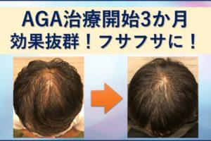 AGA治療3か月ミノタブで生えすぎ
