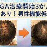 AGA治療3か月の変化