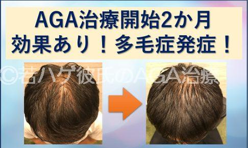 AGA治療2か月の経過