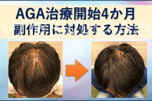 AGA治療4か月副作用に対処する方法