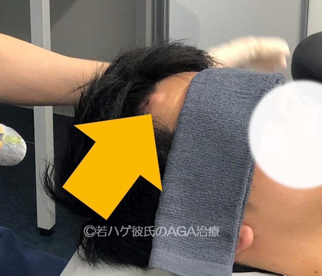 ドクターメソを受けた後の頭皮
