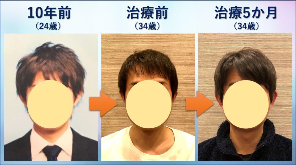 AGA治療での前髪の変化