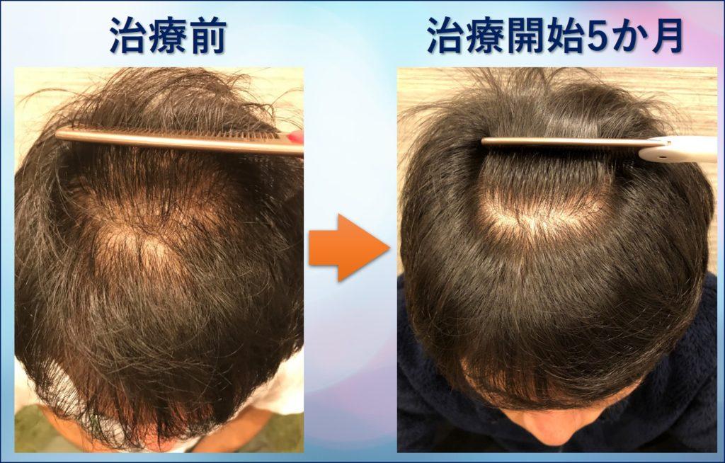 AGA治療5か月頭頂部アップ