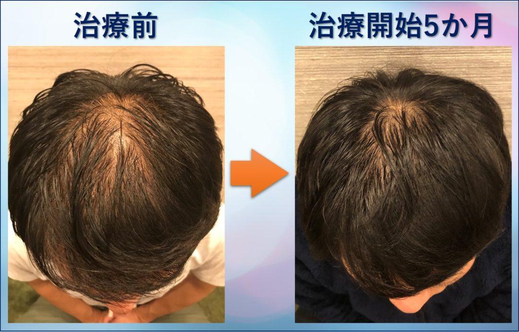 AGA治療5か月頭頂部