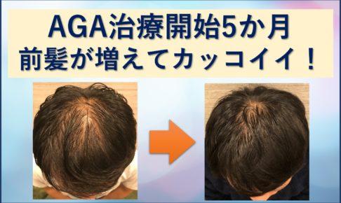 AGA5か月前髪増えた!