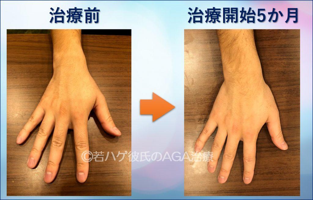 AGA治療5か月の変化(手)