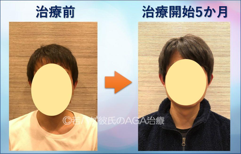 彼氏がAGA治療で前髪増えた