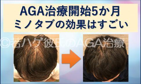 AGA治療5か月目を写真付きで紹介