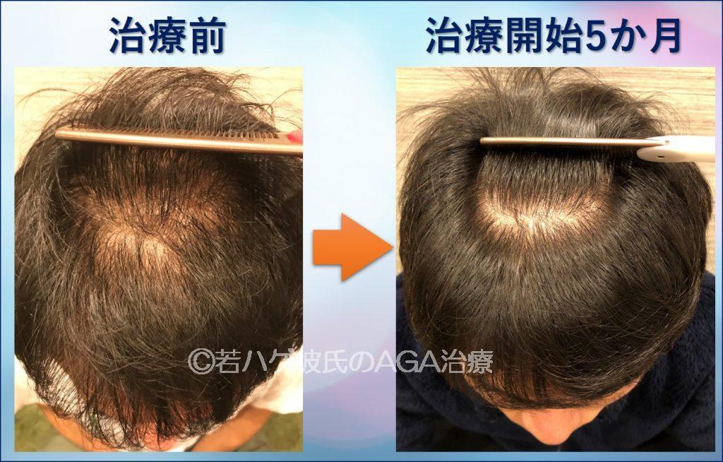 AGA治療5か月の変化(頭頂部)
