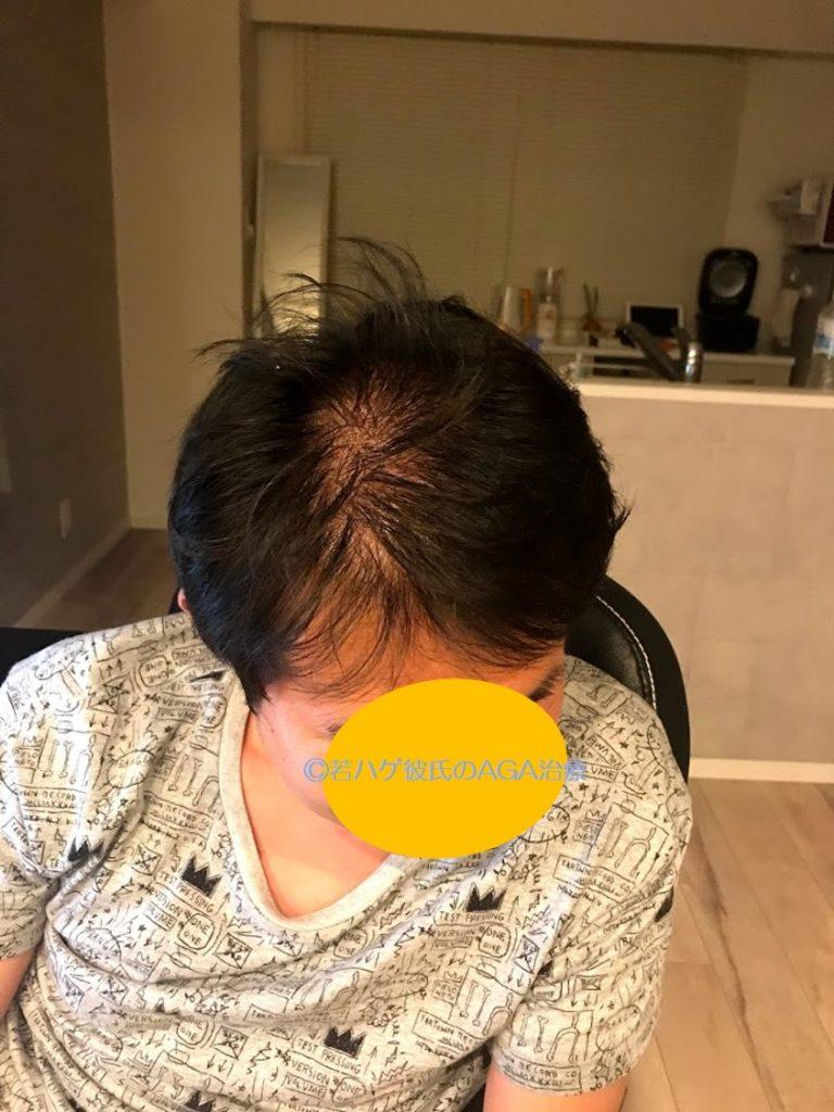 AGA治療開始前の薄毛の彼の頭