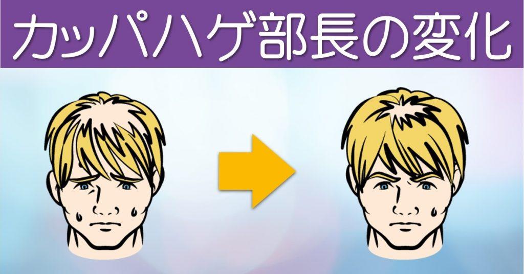 部長の毛量変化イメージ