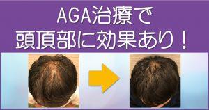 AGA治療で頭頂部に効果あり