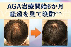AGA治療6か月目。経過ブログで晩酌