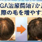 AGA治療7か月目生え際の髪の毛を増やす方法