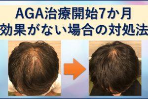 AGA治療 効果がない場合の対処法