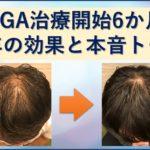 AGA治療半年の効果と本音トークブログ