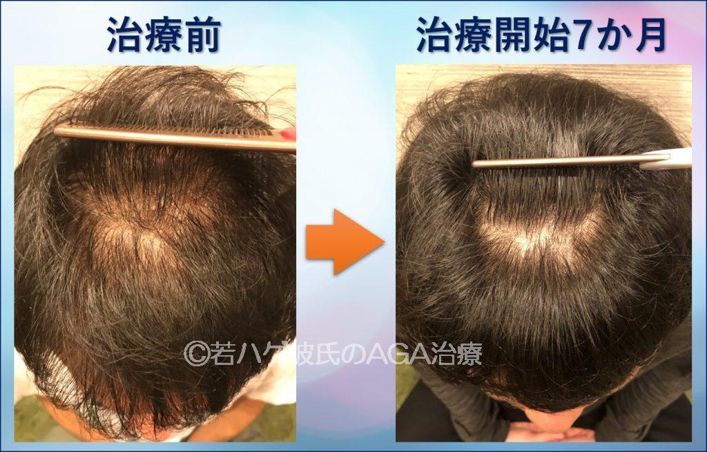 AGA治療7か月の頭頂部アップ