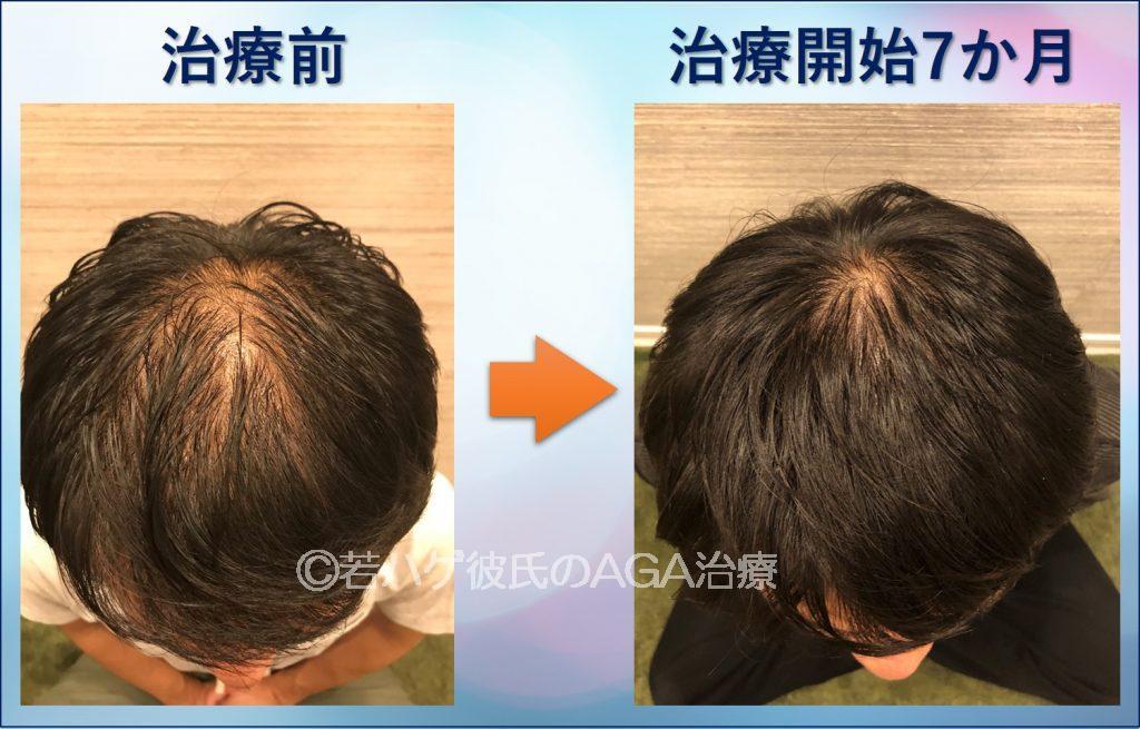 AGA治療7か月の頭頂部