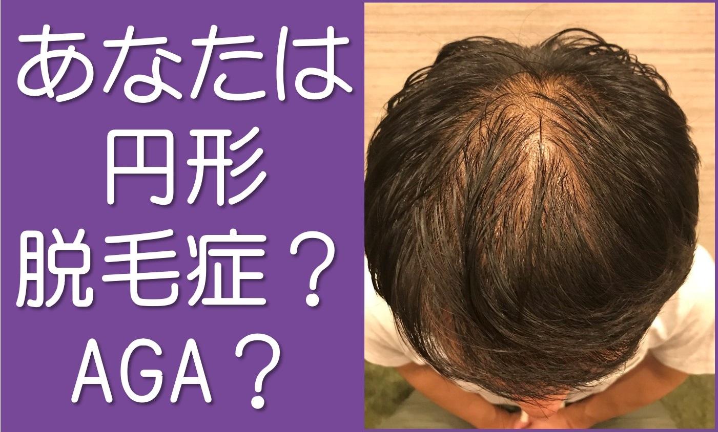 あなたは円形脱毛症?AGA?