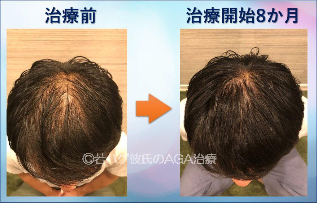 AGA治療8か月推移 頭頂部