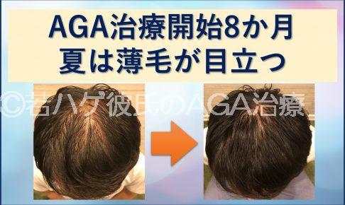 AGA8か月 夏は薄毛が目立つ