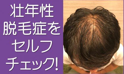 壮年性脱毛症をセルフチェック