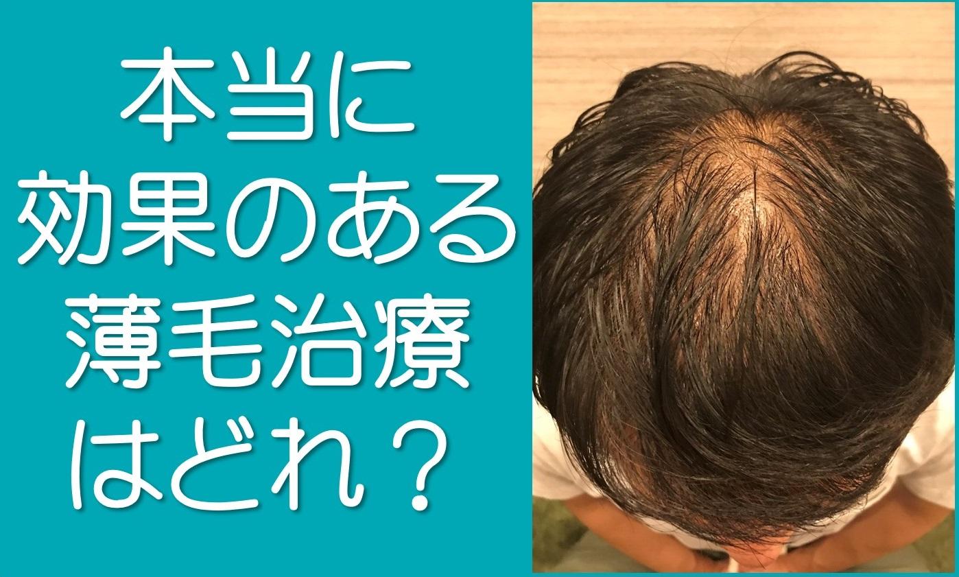 薄毛治療に効果はない