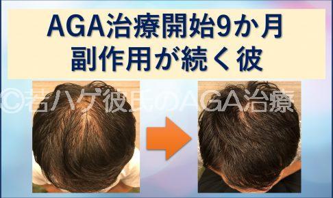 AGA治療9か月副作用が続く彼