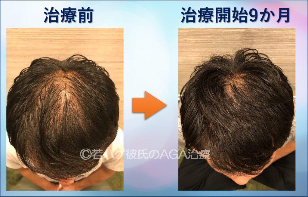 AGA治療9か月頭頂部の経過