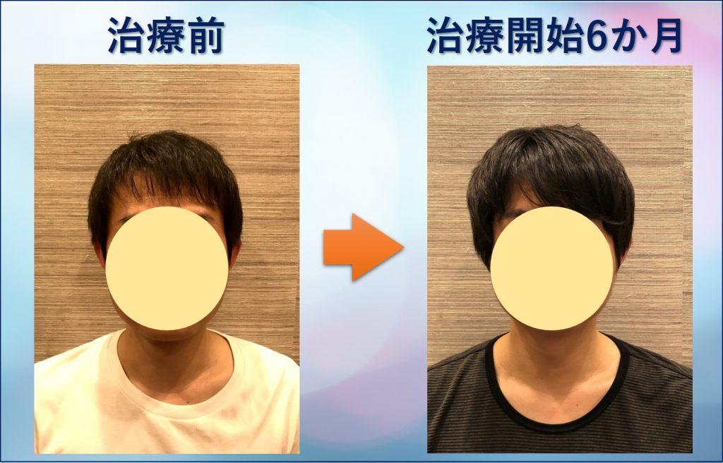 前髪が薄い男の変化