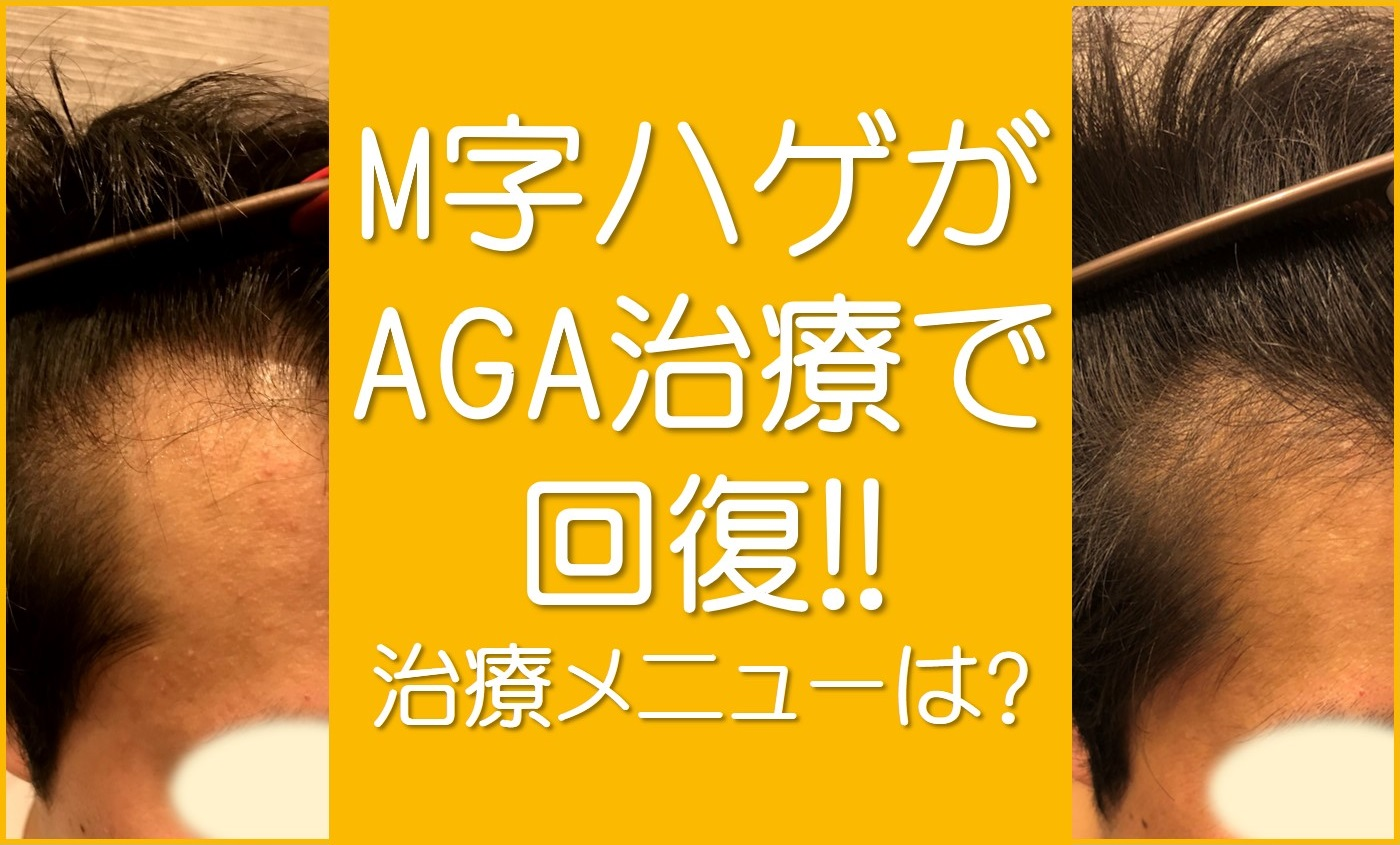 M字ハゲがAGA治療で回復
