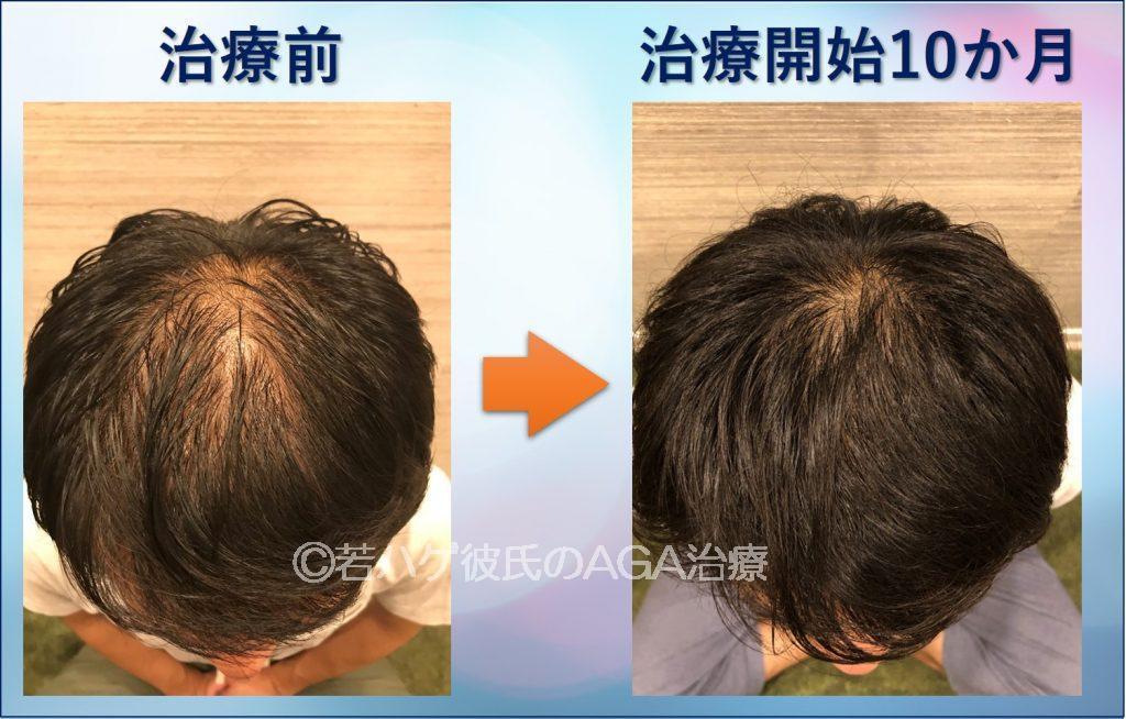 AGA治療10ヵ月経過頭頂部