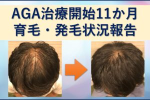 AGA治療11か月育毛・発毛ブログ