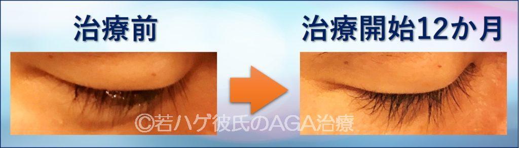 AGA治療薬による副作用(多毛症でまつ毛が伸びた)