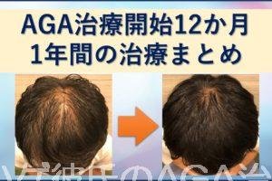 AGA治療1年間のまとめ