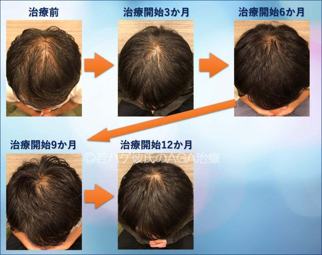 AGA治療を1年間行った結果(頭頂部の毎月の変化まとめ)