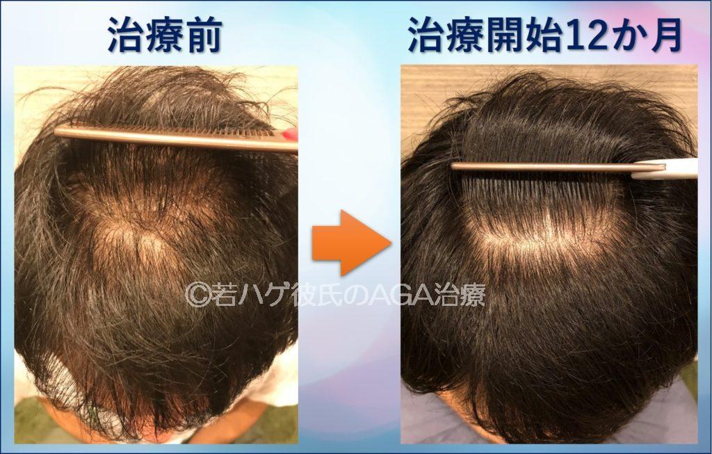 AGA治療を1年間行った結果(頭頂部アップ)