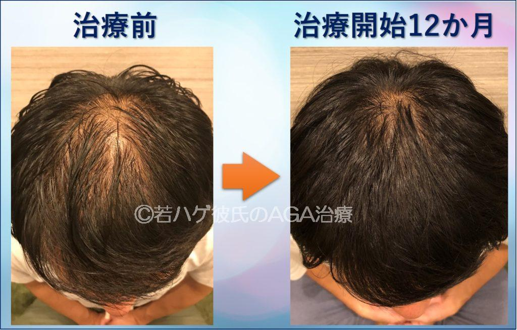 AGA治療を1年間行った結果(頭頂部)