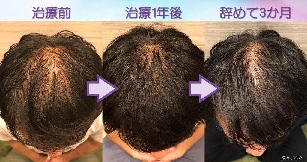 AGA治療を辞めて3か月の頭頂部